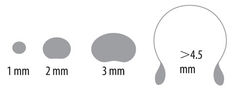 Morfología de las gotas de lluvia