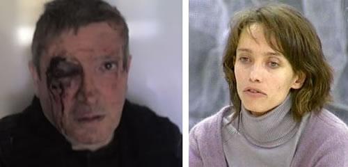 Jean-Michel André fotografiado tras la agresión (izquierda) e Irina Belenkaya (derecha)
